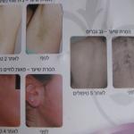הסרת שיער - לפני ואחרי